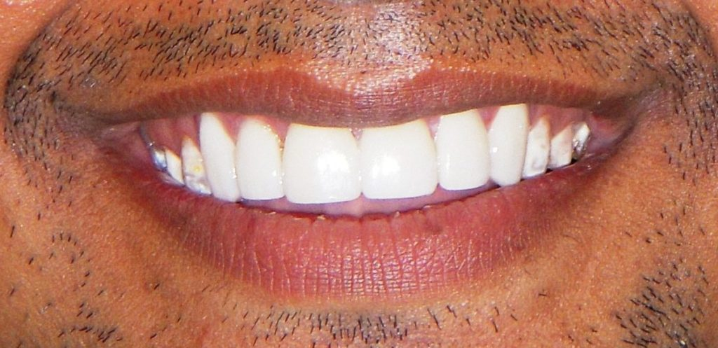 Smile Makeover with Ceramic Laminates in Delhi - After