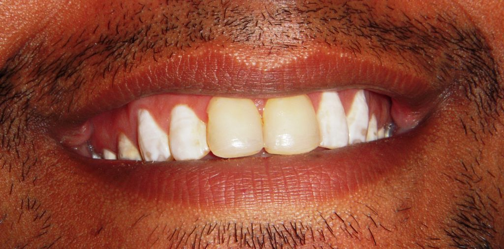 Smile Makeover with Ceramic Laminates in Delhi - Before