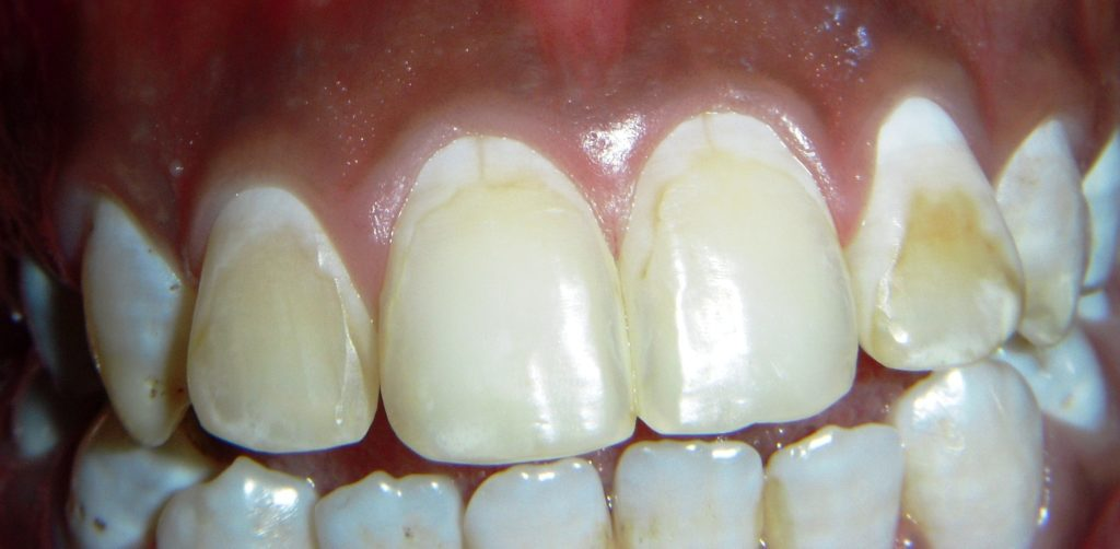 Smile Makeover with Composite Laminates in Delhi - Before