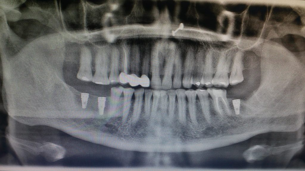 Dental Implants OPG - After