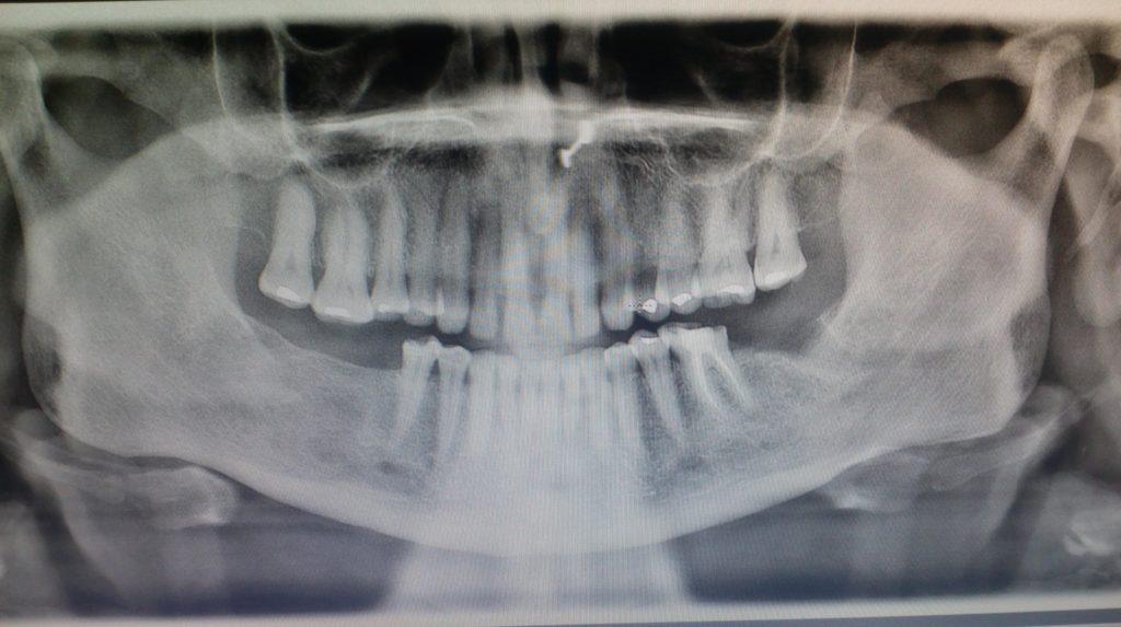Dental Implants OPG - Before