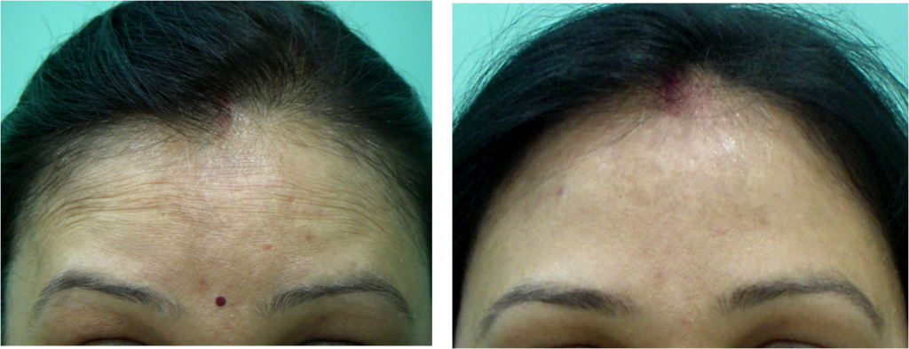 Forehead Lines Botox in Delhi