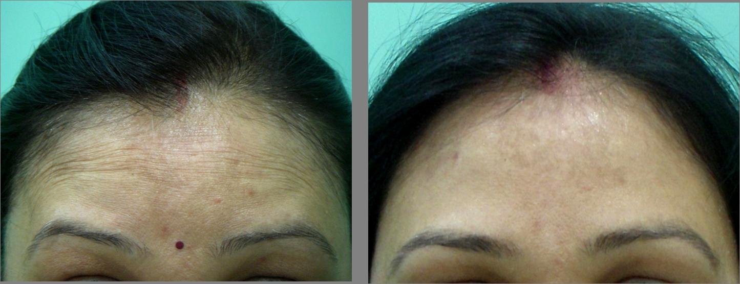 Botox Treatment in South Delhi | Best Filler Treatment in ...