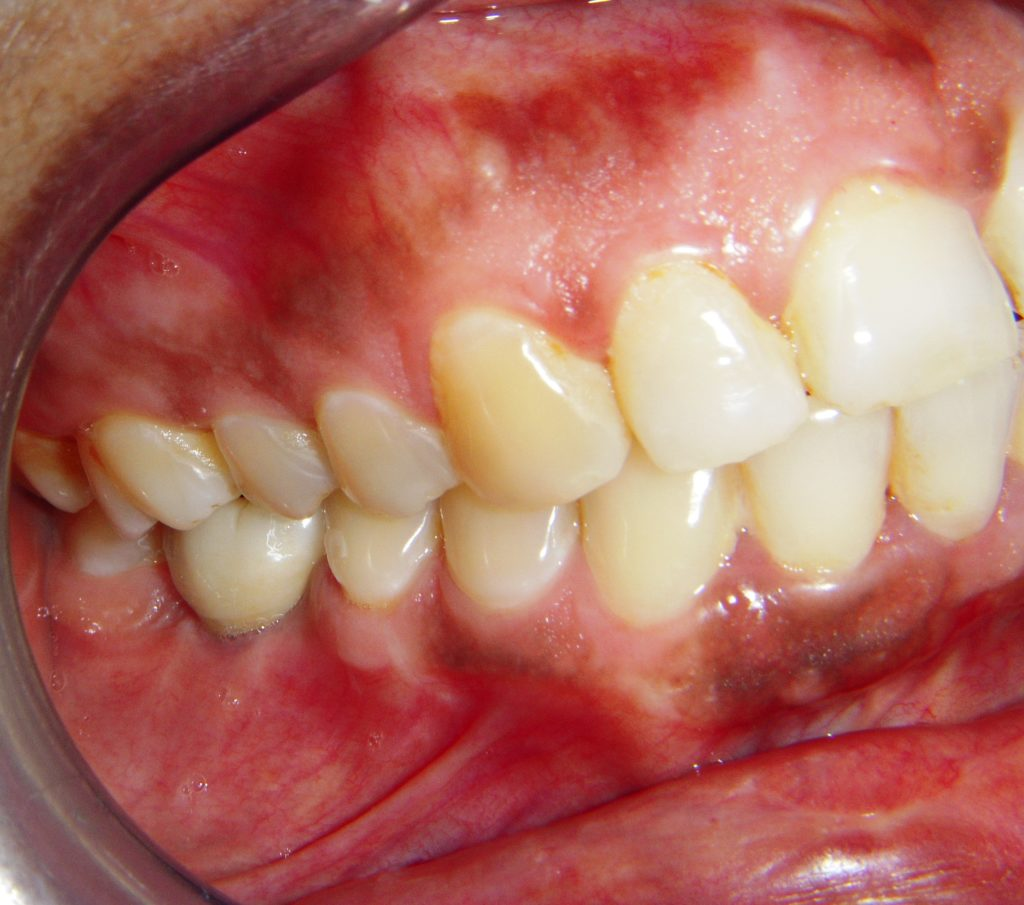 Single Tooth Implant in Delhi - After