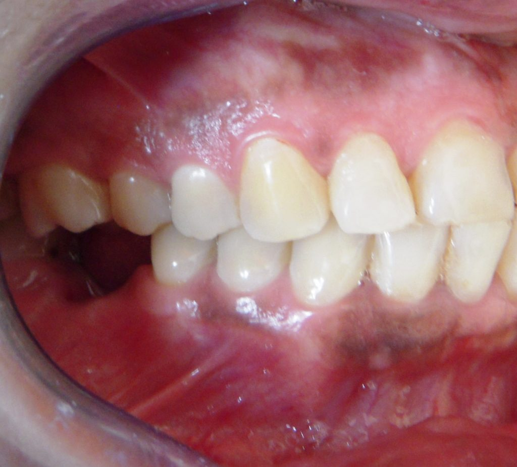 Single Tooth Implant in Delhi - Before