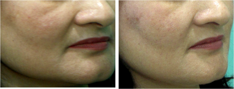 Juvederm -NASOJUGAL FILLERS in Delhi