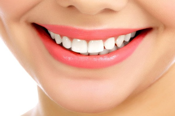 Smile Makeover in South Delhi