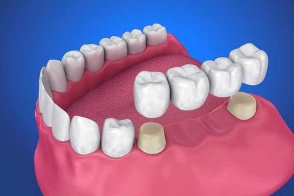 Dental Crowns & Bridges in Delhi
