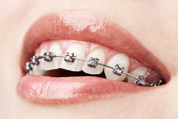 Orthodontics Treatment in Delhi