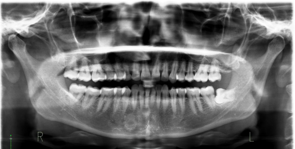 Digital Full Mouth Xray