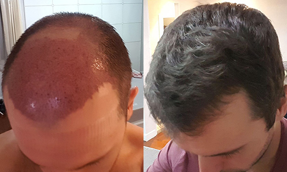 Hair Transplant in South Delhi