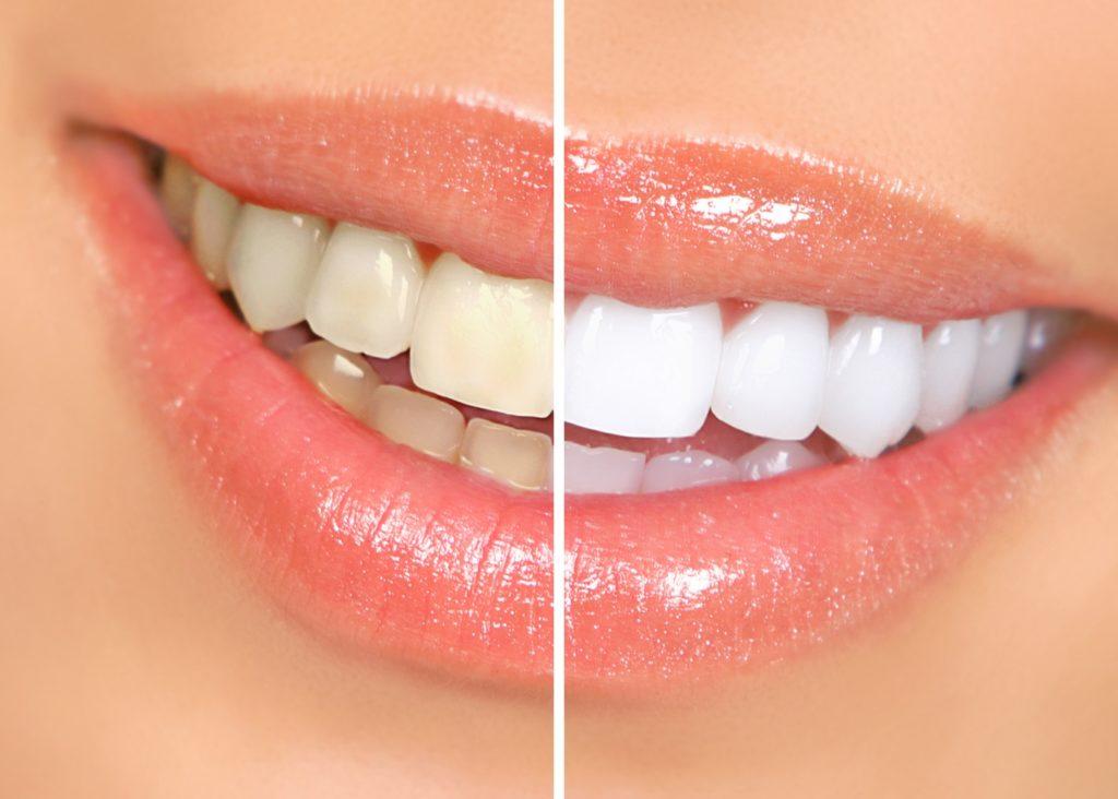 Teeth Whitening in South Delhi