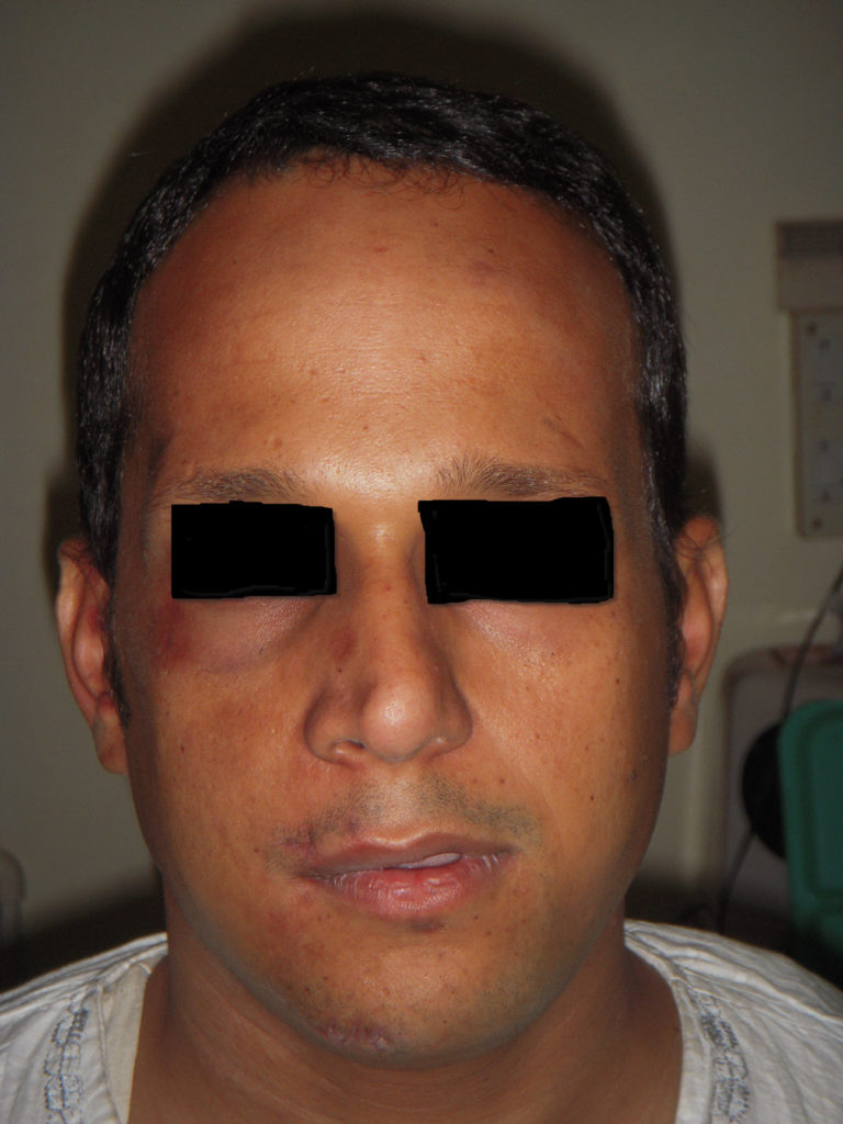 Maxillofacial Surgery - Delhi - Before