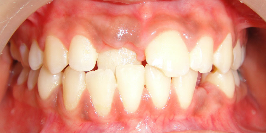 Orthodontics Treatment Pre