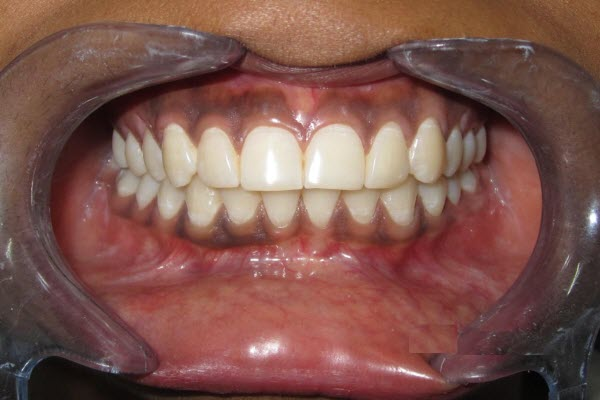 Perio Gums Treatment - After