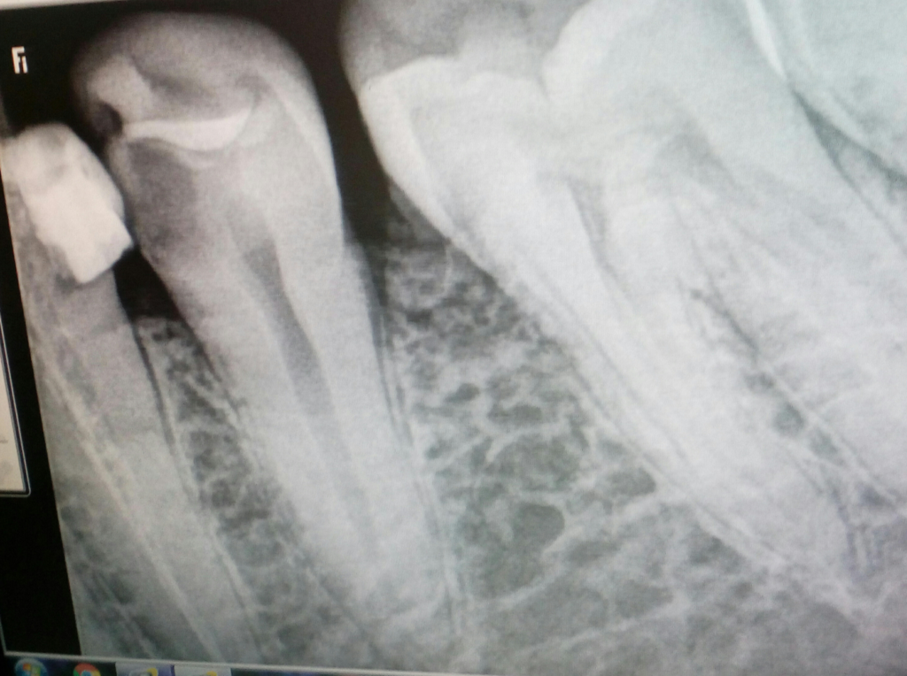 Root Canal Treatment (RCT) - Pre