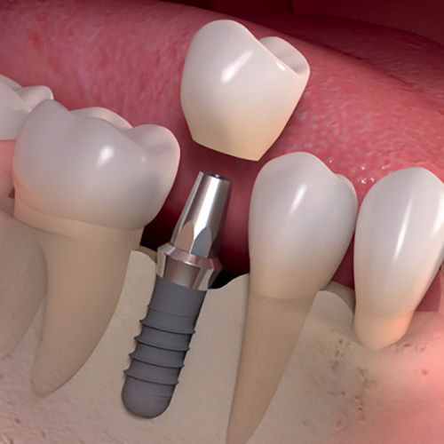Visit The Best Dental Clinic for Dental Implants in Delhi