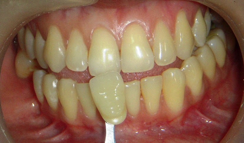 Teeth Whitening Delhi - Before