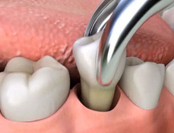 Everything You Should Know about Pre and Post Tooth Extraction