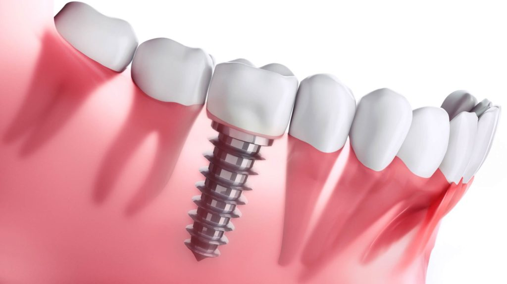 Dental Implants in South Delhi