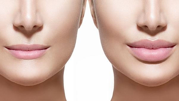 Painless Lip Reduction Surgery Treatment, Recovery & Cost in Delhi