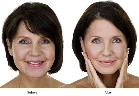What is Vampire Facelift? Know About Vampire Facial Treatment Procedure in Delhi